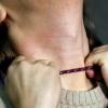 В Лихославле бывший муж избивал и душил шнурком свою бывшую супругу
