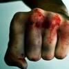 В Тверской области сын жестоко избил собственную мать, от множественных повреждений головы, тела и конечностей женщина умерла